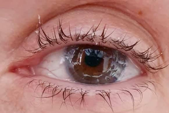 Justine's new cornea 4 weeks post surgery